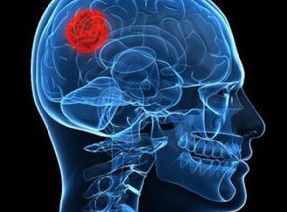 ارتباط آلودگی هوا و تومور مغزی بدخیم